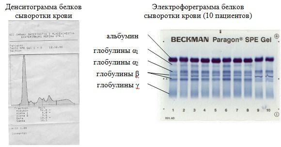 Электрофорез белков крови