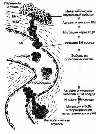 Метастатический каскад. Опухоли