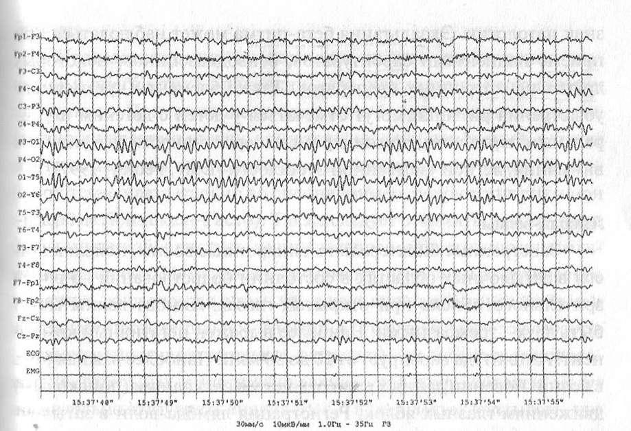 В состоянии пассивного бодрствования регистрируется альфа-ритм частотой 10 Гц
