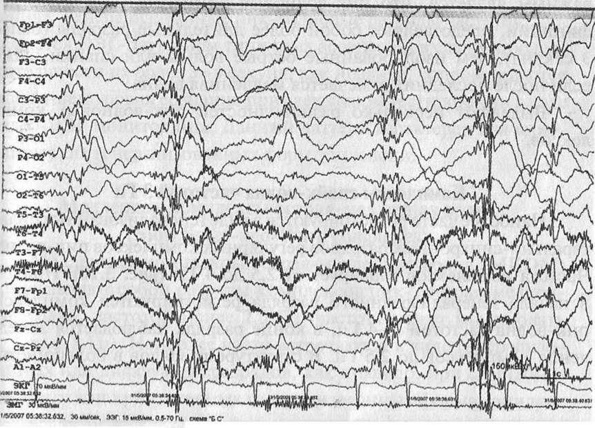 Юношеская миоклоническая эпилепсия.