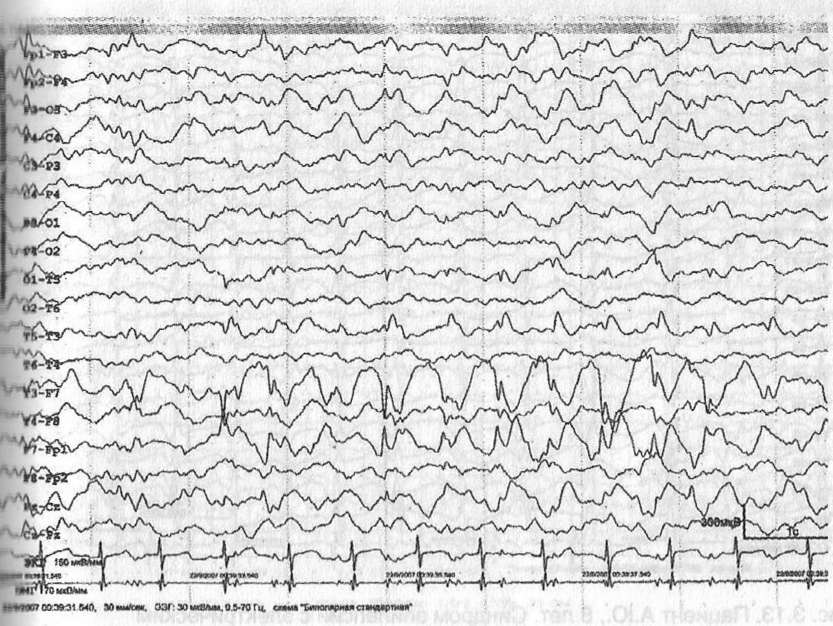 Симптоматическая фокальная эпилепсия
