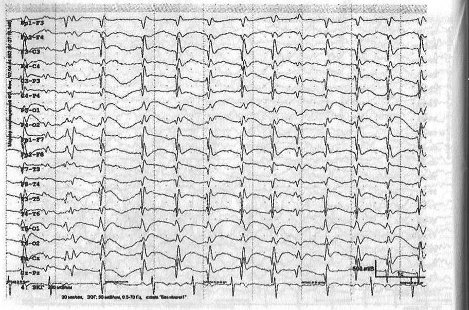 Синдром эпилепсии с электрическим эпилептическим статусом медленного сна