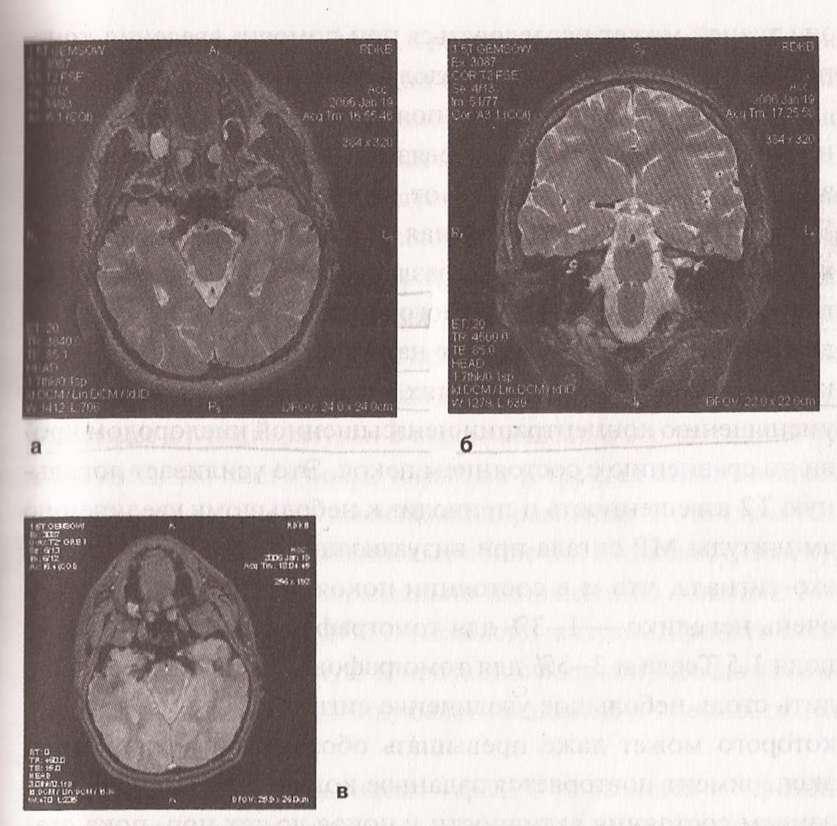 Кавернозная гемангиома — источник стойкого регионарного эпилептогенеза.