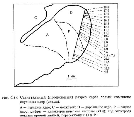 сагиттальный разрез через левый компллекс слуховых ядер