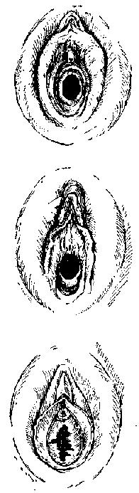 Формы девственной плевы: а) кольцеобразная, б) полулунная, в) бахромчатая
