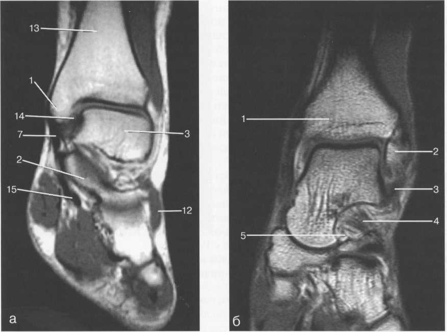 MPT голеностопного сустава, Т1-ВИ.