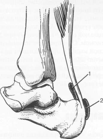 Сумки ахиллова сухожилия.