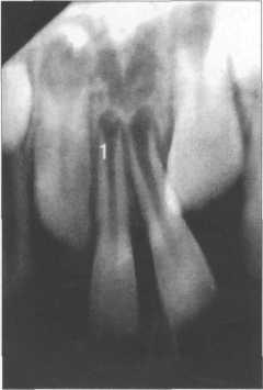 Рентгенограмма верхних центральных резцов ребенка.