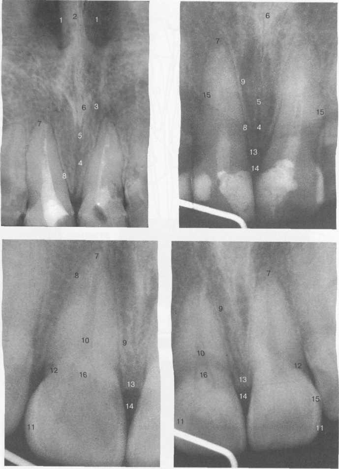 Схема анатомических структур, выявляемых при внутриротовой рентгенографии передних отделов верхней челюсти