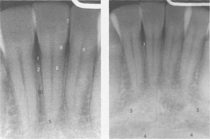 Внутриротовые рентгенограммы передних отделов нижней челюсти.