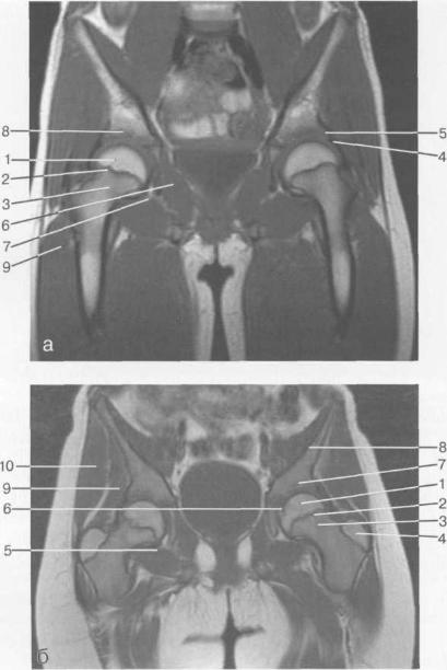 MPT тазобедренных суставов (10 лет). Корональная плоскость, Т1-ВИ.