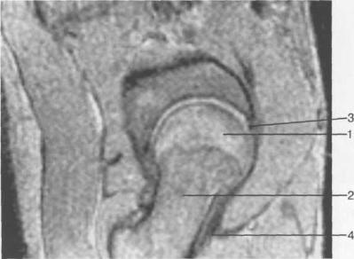 MPT тазобедренного сустава (13-14 лет). Косая сагиттальная плоскость.