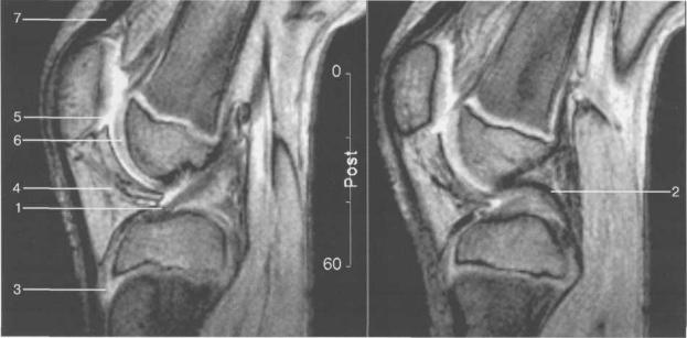 МРТ коленного сустава. 13 лет. Сагиттальная плоскость.