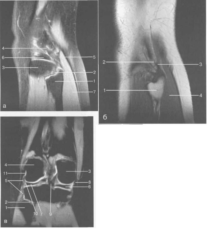 MPT коленного сустава взрослого.