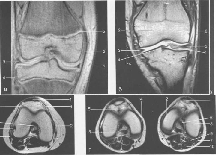 МРТ коленного сустава.