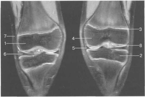 МРТ коленных суставов (10 лет). Корональная плоскость.