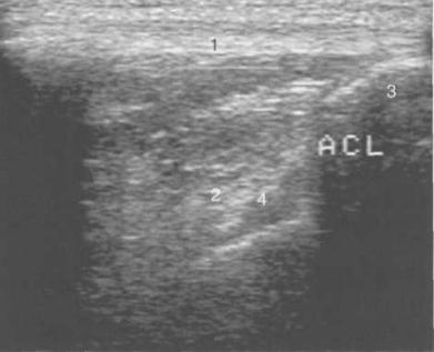 УЗИ коленного сустава взрослого. Визуализация передней крестообразной связки.