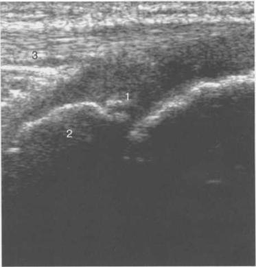 УЗИ коленного сустава. Начальная оссификация бугристости большеберцовой кости 12 лет.