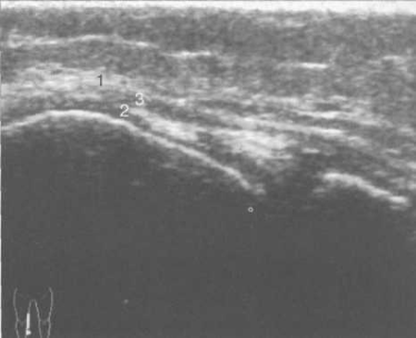 УЗИ коленного сустава. 14 лет. Продольно-медиальное сканирование. Медиальная коллатеральная связка.