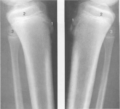 Рентгенограммы коленного сустава (боковая проекция). 13 лет. Варианты оссификации бугристости большеберцовой кости.