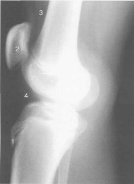 Рентгенограмма коленного сустава (боковая проекция). 14-15 лет.