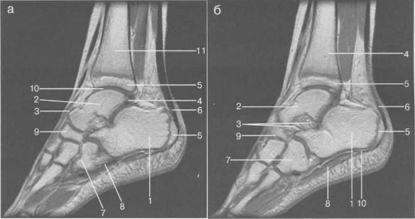 МРТ голеностопного сустава и стопы, сагиттальная плоскость, Т1-ВИ.