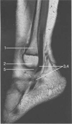 МРТ голеностопного сустава, Т1-ВИ, парасагиттальная плоскость через латеральные отделы сустава.