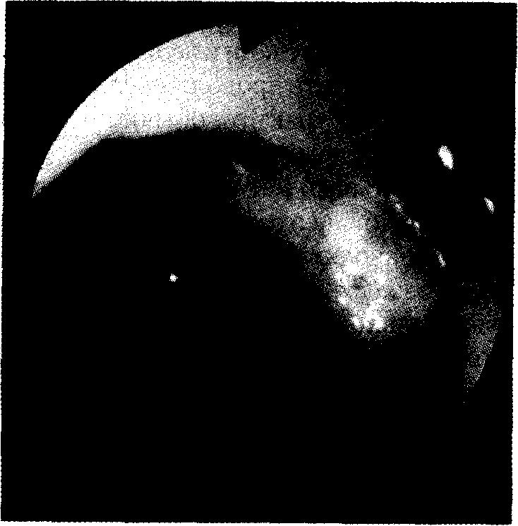 Эндоскопическая картина язвы луковицы двенадцатиперстной кишки. Язва имеет чистое дно с гладкими краями, что свидетельствует о ее доброкачественности.