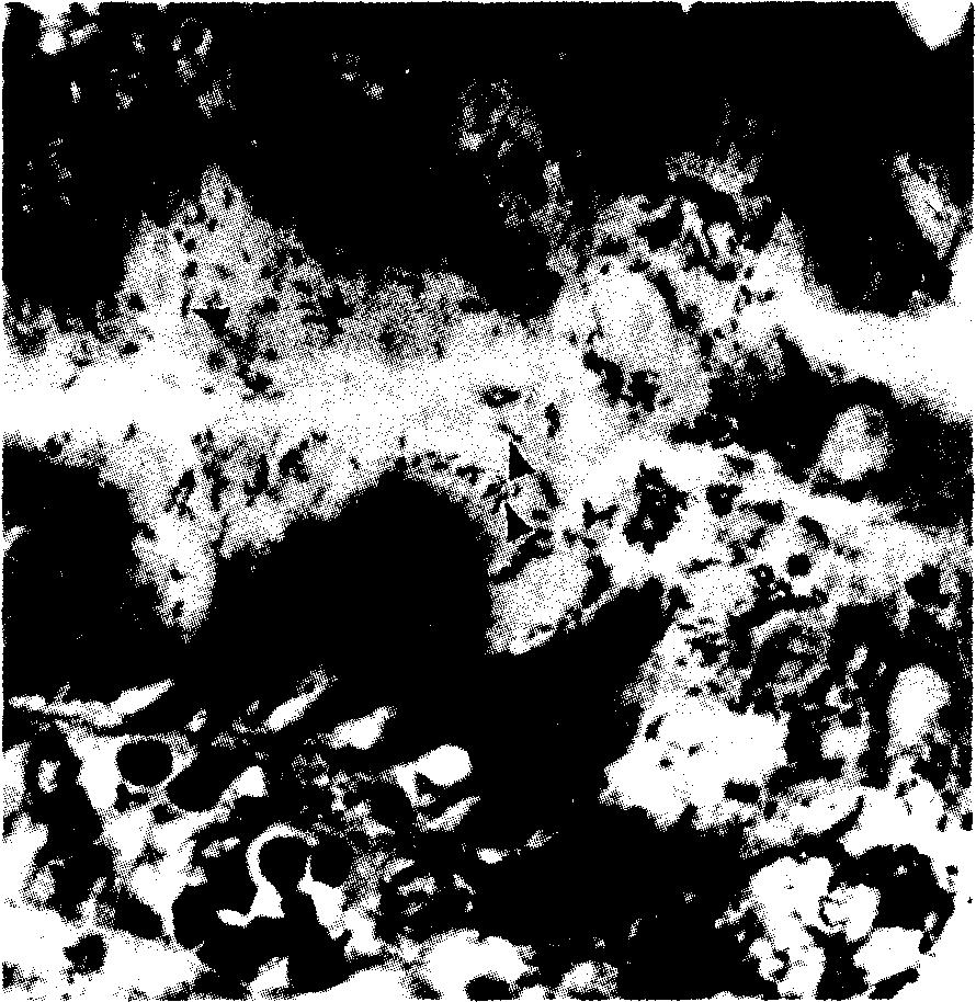 На гистологическом препарате биоптата слизистой оболочки антрального отдела желудка выявлены Helicobacter pylori в виде множественных изогнутых палочек