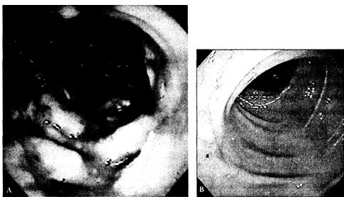 Псевдомембранозный колит. (А) — эндоскопическая картина слизистой оболочки толстой кишки больного с псевдомембранозным колитом.