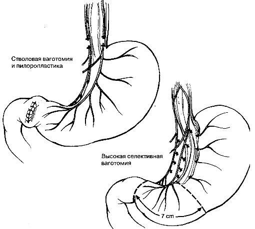Типы ваготомии