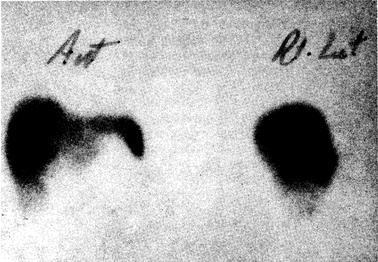 """Сканирование печени с помощью изотопа 99mТc, при котором в правой доле печени выявляется аденома в виде """"холодного очага"""""""