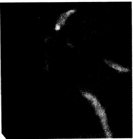 Ретроградная эндоскопическая холангиография при первичном склерозирующем холангите