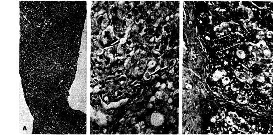 Дефицит а1-антитрипсина. (А) — биопсия печени больного в период первого года цирроза печени при малом увеличении светового микроскопа.