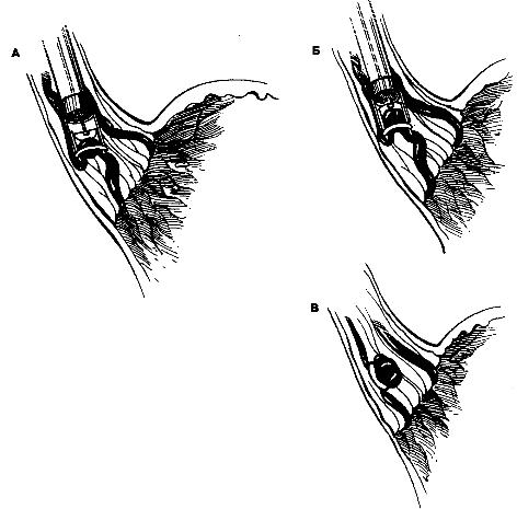 Эндоскоп с приспособлением для присасывания варикозного узла и его местной перевязки. (Б) Наложение резиновой петли на основание варикозного узла. (В) Эндоскоп удалили.