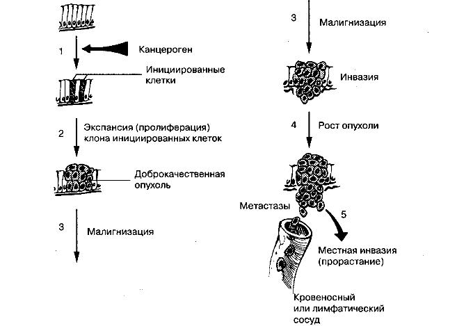 Опухолевый рост. На данной схеме представлена типичная последовательность канцерогенеза.
