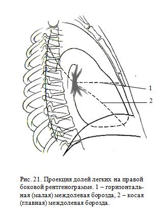 проекия долей легких на правой боковой рентгенограмме
