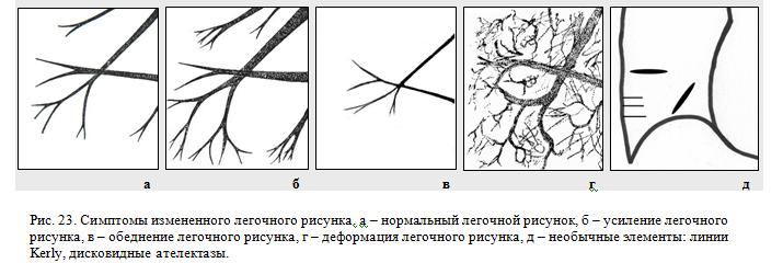 симптомы измененного легочного рисунка