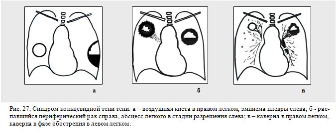 синдром кольцевидной тени в легких