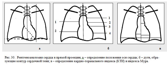 Рентгеноанатомия сердца в прямой проекции