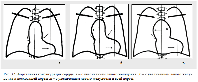 аортальная конфигурация сердца