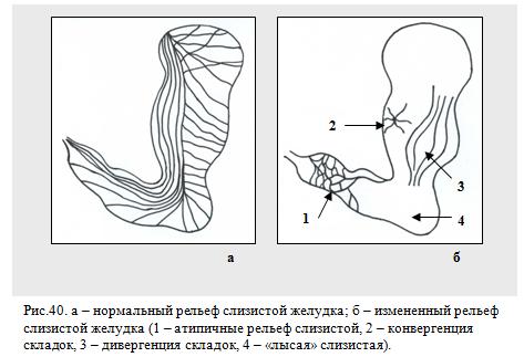 рельеф слизистой оболочки желудка