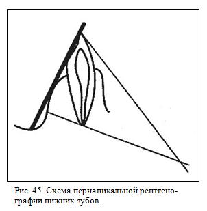 Периапикальная рентгенография нижних зубов