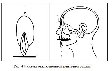 Окклюзионная рентгенография зубов