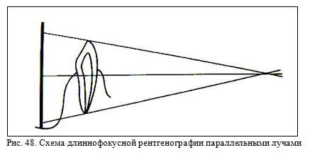 Длиннофокусная рентгенография параллельными лучами зубов