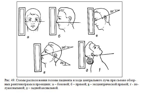 Обзорная рентгенография лицевого черепа