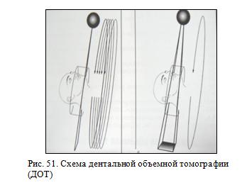 Дентальная объемная томография