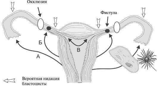 Потенциальные варианты трансмиграции яйцеклетки и/или сперматозоидов: А - наружная трансабдоминальная миграция яйцеклетки; Б - трансабдоминальная миграция сперматозоидов; В - внутренняя миграция зиготы в маточную трубу из полости матки