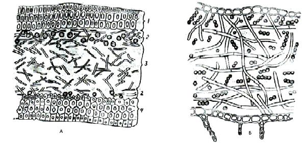 Строение талломов лишайников
