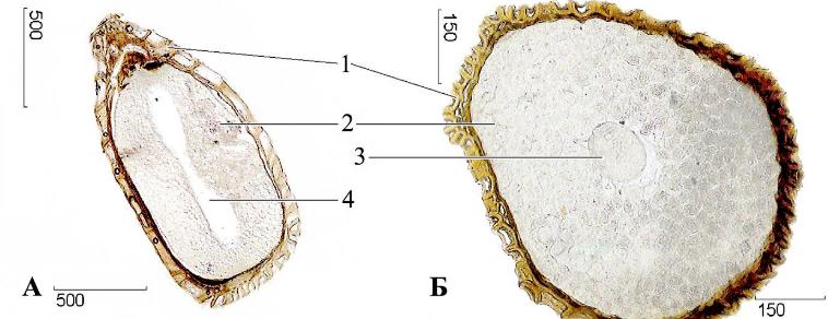 Черника обыкновенная плоды микроскопия